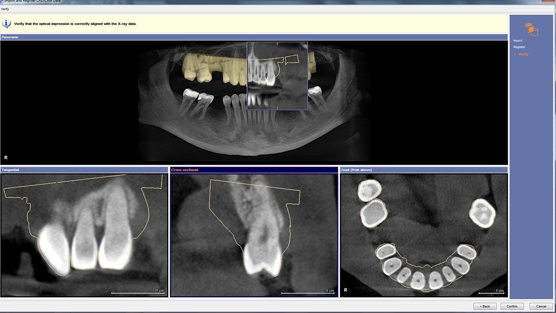 galileos implant anleitung